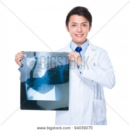 Male doctor show x ray film