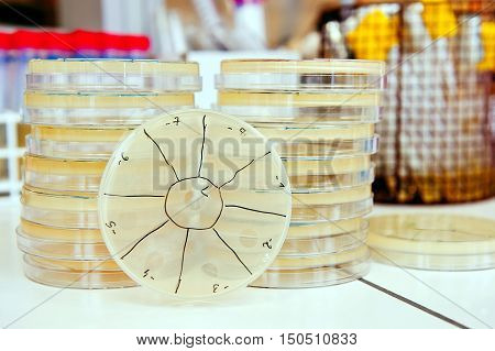 pile of agar petri dish with phage plaques in laboratory. Making titer of bacteriophages