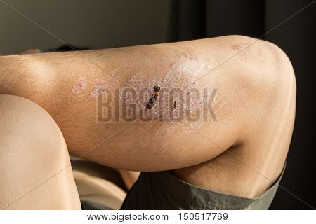 Injured Knee With Scar From Abrasion Healing