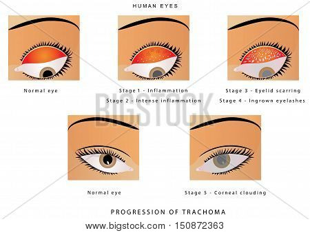 Trachoma of the eye. Progression of trachoma. Trachoma, an infection of the eye caused by Chlamydia trachoma is. Trachoma is a bacterial infection that affects your eyes