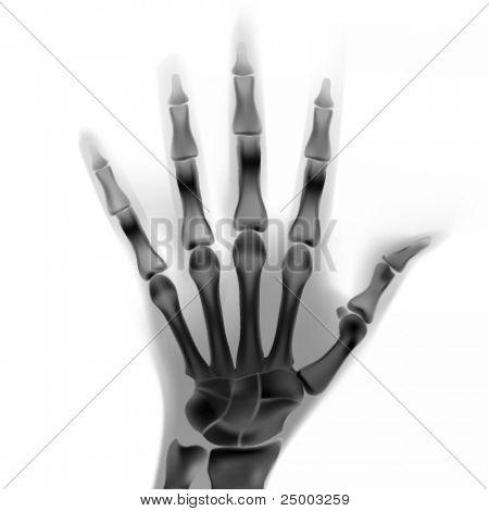 vektorové rentgen ruky