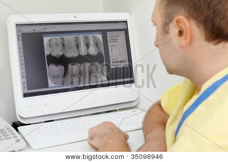 Dentist carefully looks at teeth X-rays at computer monitor in dental clinic. Focus on monitor.