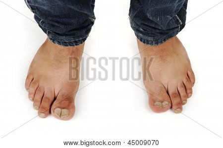 deformed male feet