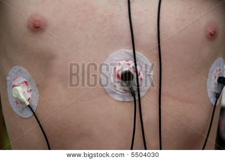 Heart Monitor Leads On Chest