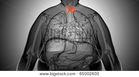 X-ray  Illustration Of The Overweight Woman With  Thyroid Gland