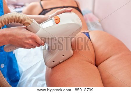 procedure for women hip for cellulite and fat
