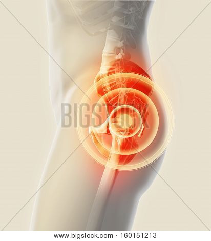 Hip Painful Skeleton X-ray, 3D Illustration.