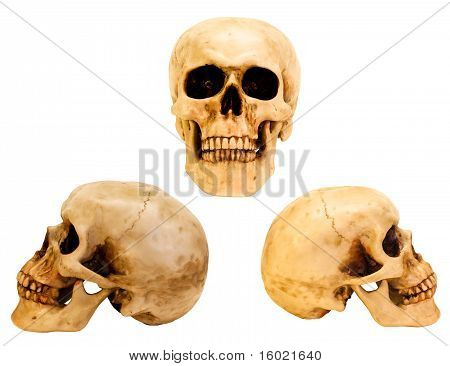 Three Views Of The Human Skull