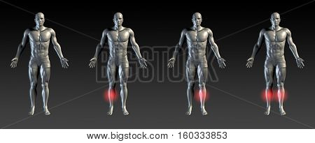 Shin Splints with Red Glow on Area Series 3d Illustration Render
