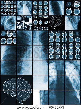 Set of medical test images diagnostics concept.