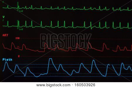 Close up of a medical monitor showing a cardiac rhythm, atrial fibrillation on the green lines, arterial blood pressure wave on the red line and the oxygen saturation level, plethsmography, on her blue line. The monitor has a black background.
