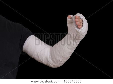 Young Man Wearing A Long Arm Plaster Fiberglass Cast