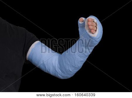 Young Man Wearing A Blue Long Arm Plaster Fiberglass Cast