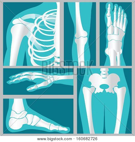 Set of xray of humanhuman jointsknee jointelbow joint ankle joint wrist skeletal spinal bone structure of Human Spine emblem or sign of medical diagnostic center flat vector illustration.