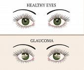 Eye Disease. Ophthalmology Flat Health Vector Illustration. Glaucoma Chronic Eye Pathology. poster