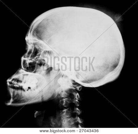 Human head  x-ray film