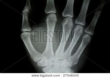 X-ray of human hand.