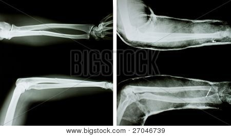 X-ray of both human arms (normal arms and arms with splint).