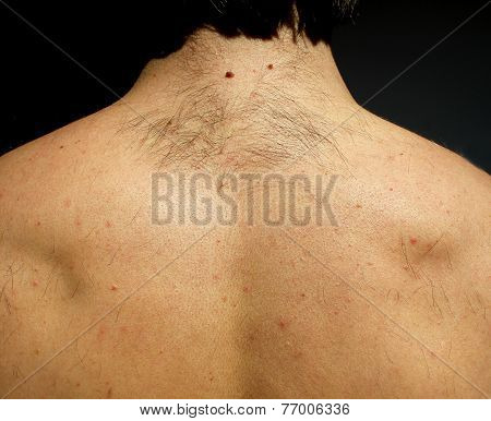 A Man From Hairs On The Back