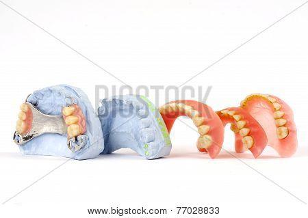 dentures 4