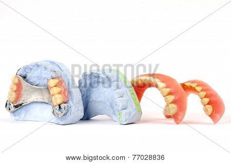 dentures 5