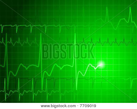 EKG background