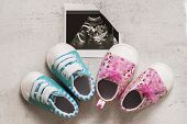 Blue And Pink Booties Next To Baby Photos With Ultrasound In The 20th Week Of Pregnancy. Waiting For poster