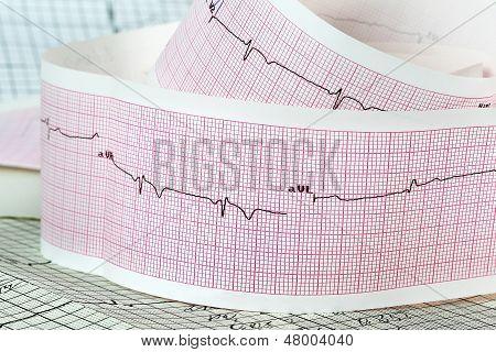 Eletrocardiograma o conceito para ataques cardíacos e acidentes vasculares cerebrais