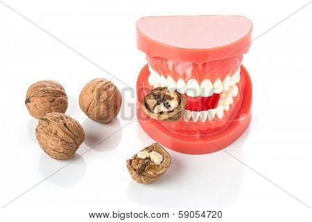 dental jaw model with walnuts
