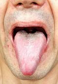 stock photo of face-fungus  - Bacterial infection disease tongue in a man - JPG