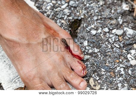 tropical leech biting human foot on street beside asian rainforest