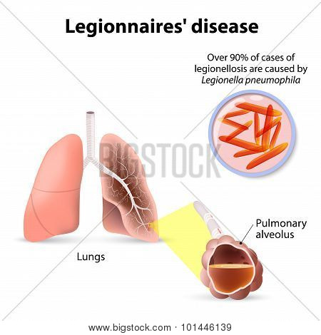 Legionnaires' Disease Or Legionellosis, Legion Fever Is A Form Of Atypical Pneumonia