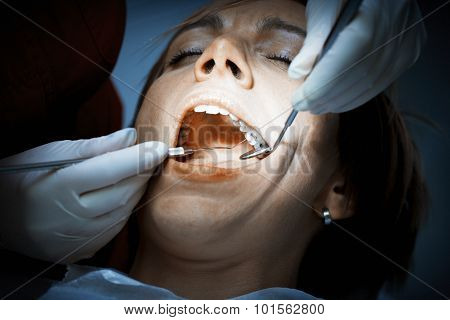 Dentist examining a patients teeth before oral surgery at the dental clinic. Removing amalgam fillings.