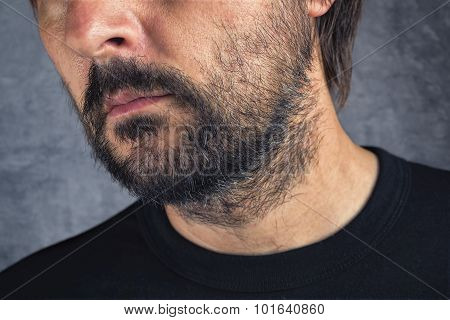 Male Facial Hair