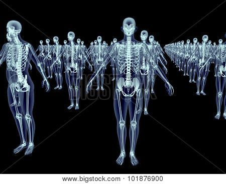 Army Of Xray Skeletons Isolated On Black