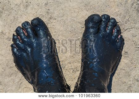 Feet Covered With A Black Therapeutic Mud
