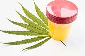 Medical Laboratory Container With Urine Sample Rests On Green Leaves Of Marijuana (weed). Photo Conc poster