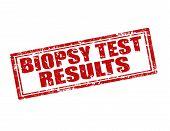 Biopsy Test Results-stamp poster
