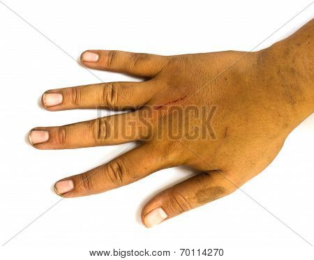Dirty And Lesions Hand On White Background