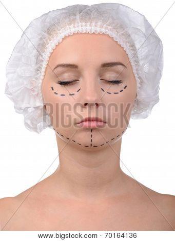 Anaplasty