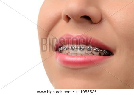 Healthy Smile - Teeth With Dental Braces
