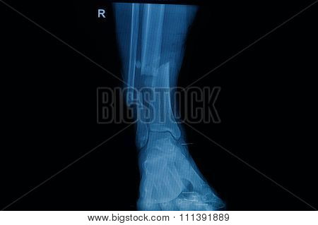 Collection Of Human X-rays  Showing Fracture Of Right Leg