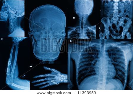 Collection Of  X-ray , Multiple Part Of Adult  Show Fracture Bone And  Disease