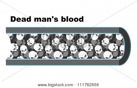 Blood Of Dead Man. Blood Cells In The Form Of Skulls. Anatomy Of Blood Vessel. Vienna Dead Man. Whit