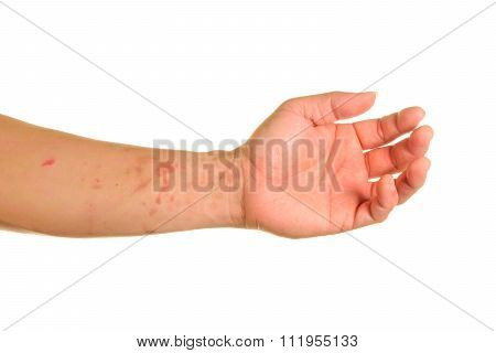 Horrible Burns In Hand On White Background