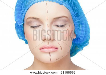 Peaceful young patient with dotted lines on the face before surgery