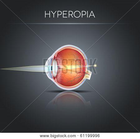 Human Vision Disorder, Hyperopia