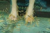 pic of fish skin  - Fish Spa for the foot Skin Therapy  - JPG