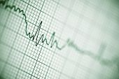 picture of electrocardiogram  - Close up of an electrocardiogram in paper form - JPG