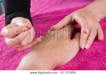 Detail Of Acupuncturist Placing A Needle In Hand Of The Patient